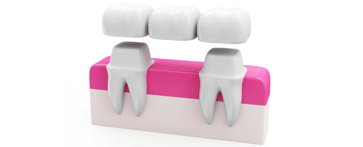 Chestermere Dental Bridges