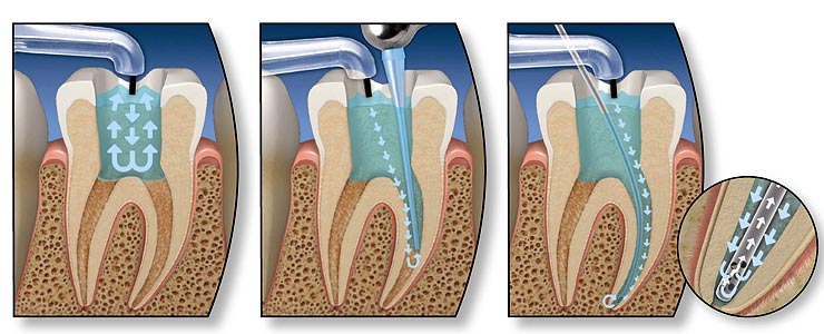 Chestermere Root Canal
