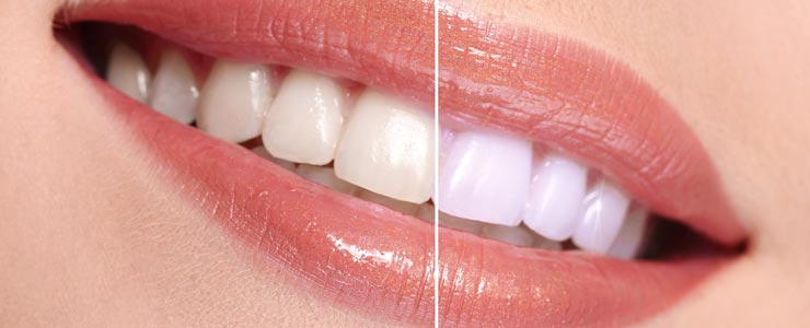 Chestermere Teeth Whitening